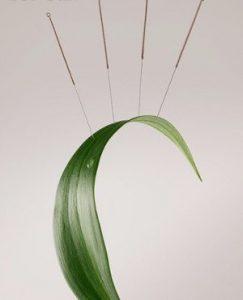 Lakelands Acupuncture Penticton